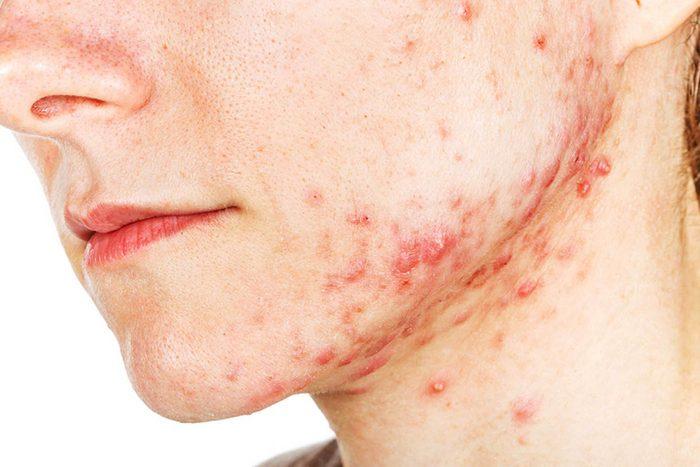 L'acné sur le menton est liée à un déséquilibre hormonal.