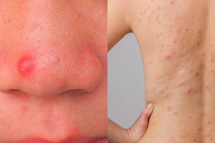 L'emplacement de l'acné n'est pas dû au hasard.