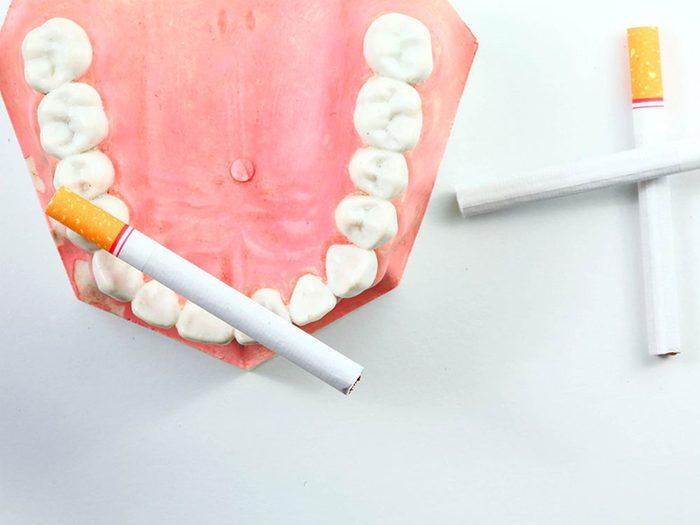 Continuer à fumer peut abîmer vos dents.