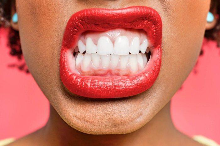 Vos dents peuvent être abîmées si vous évacuez le stress par les dents.