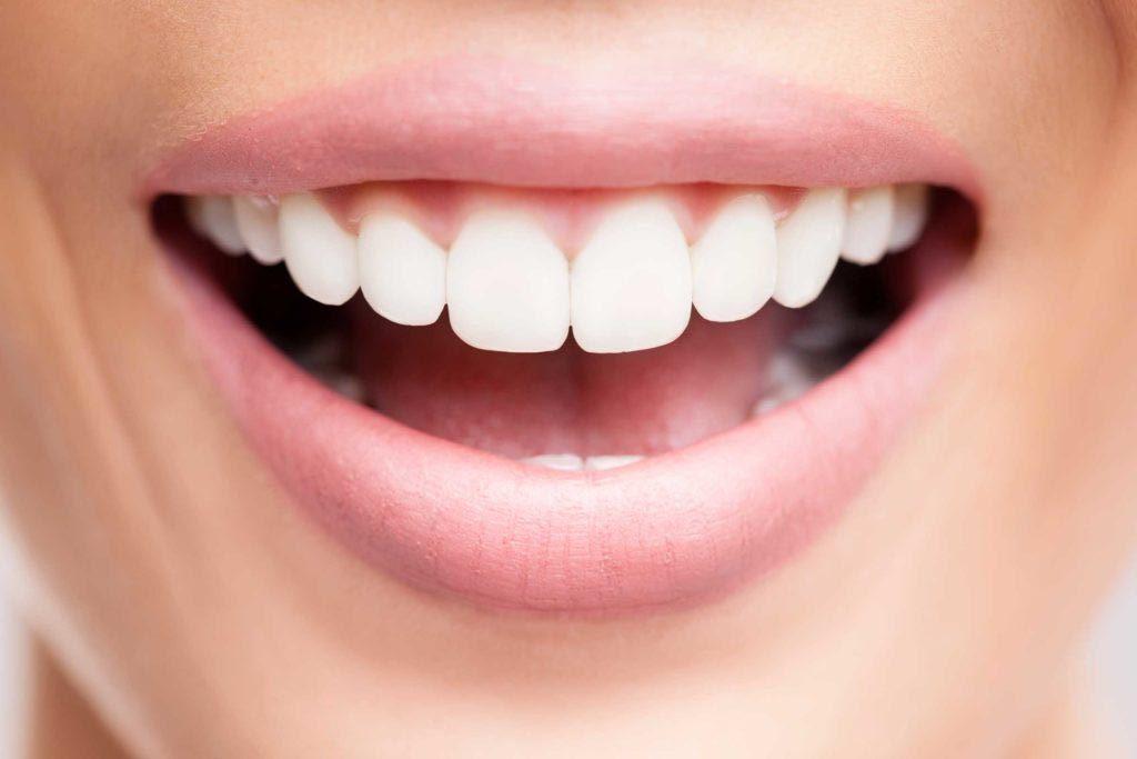 Vos dents peuvent être abîmées si vous cherchez à avoir un sourire plus blanc que blanc.