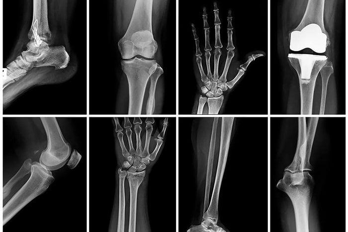 Le régime cétogène fragilise les os.