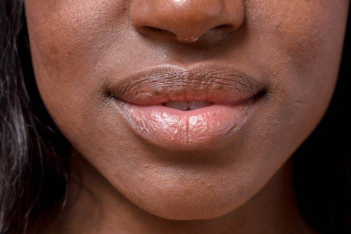 Signes de cancer méconnus : des ulcérations buccales.
