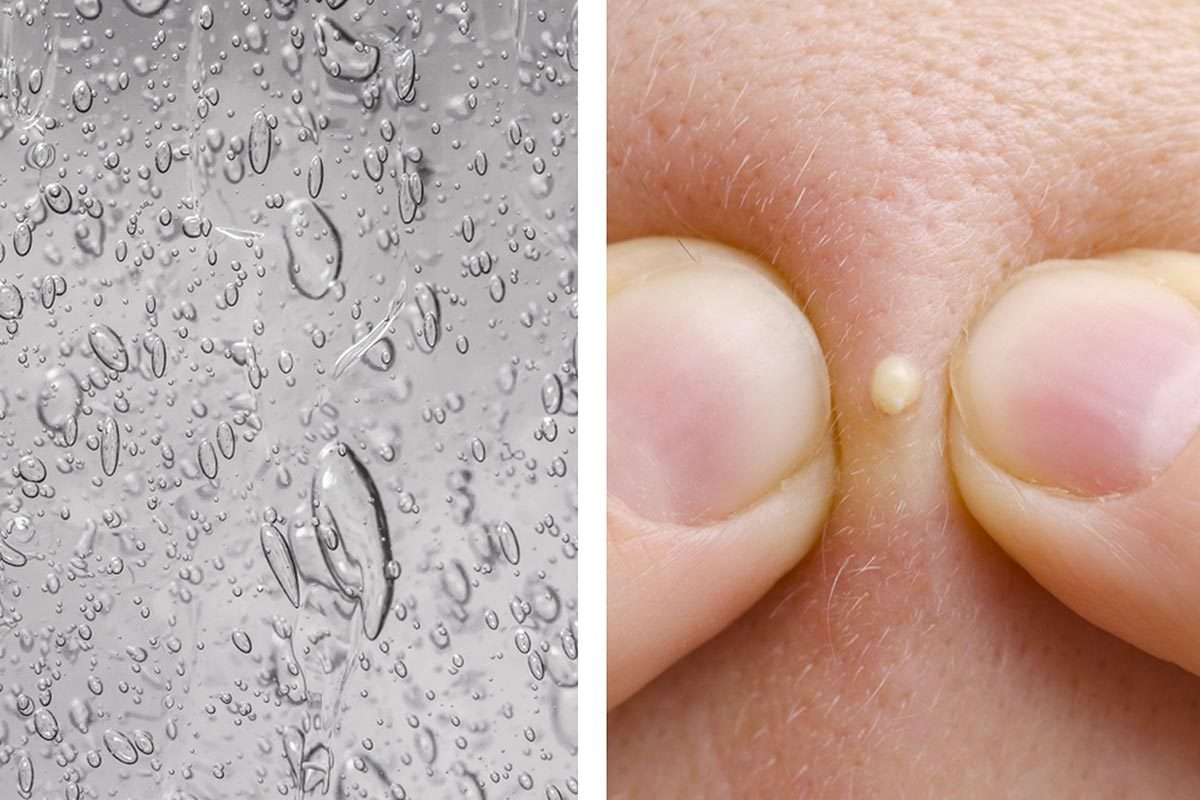 Le désinfectant pour les mains peut soulager l'acné.