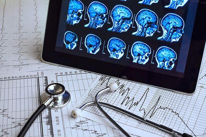 Glycémie : le glucose est extrêmement important pour le cerveau.