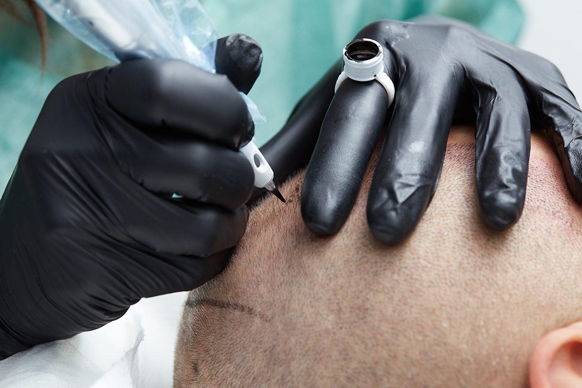 La perte de cheveux peut être camouflée avec un tatouage du cuir chevelu.