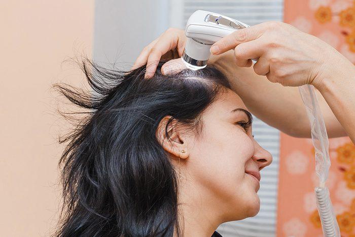 La perte de cheveux peut être traitée au laser à basse intensité.