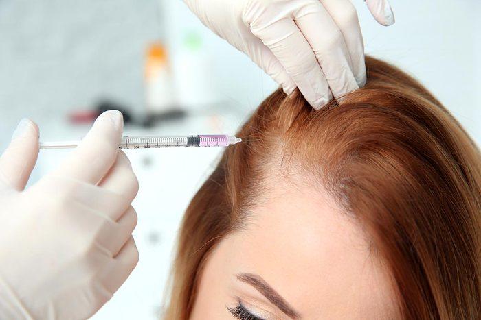 La perte de cheveux peut être traitée au plasma riche en plaquettes.