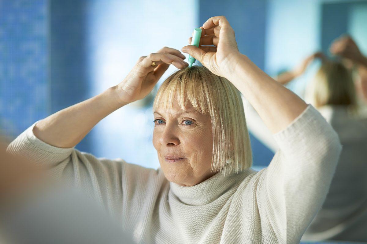 Perte de cheveux : de nouveaux traitements pourrait apparaitre.