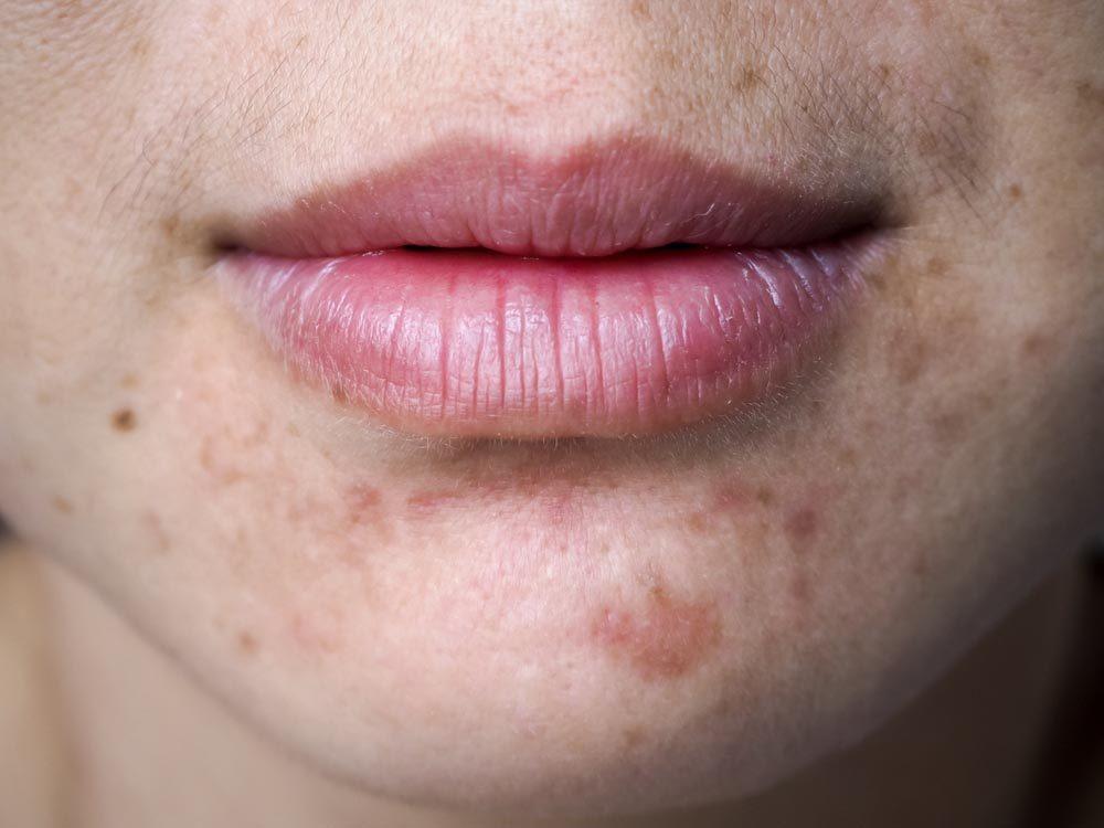 Vertu du miel : il aide à combattre l'acné.