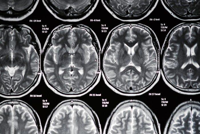 Un AVC est un blocage du flux sanguin vers une zone de votre cerveau.