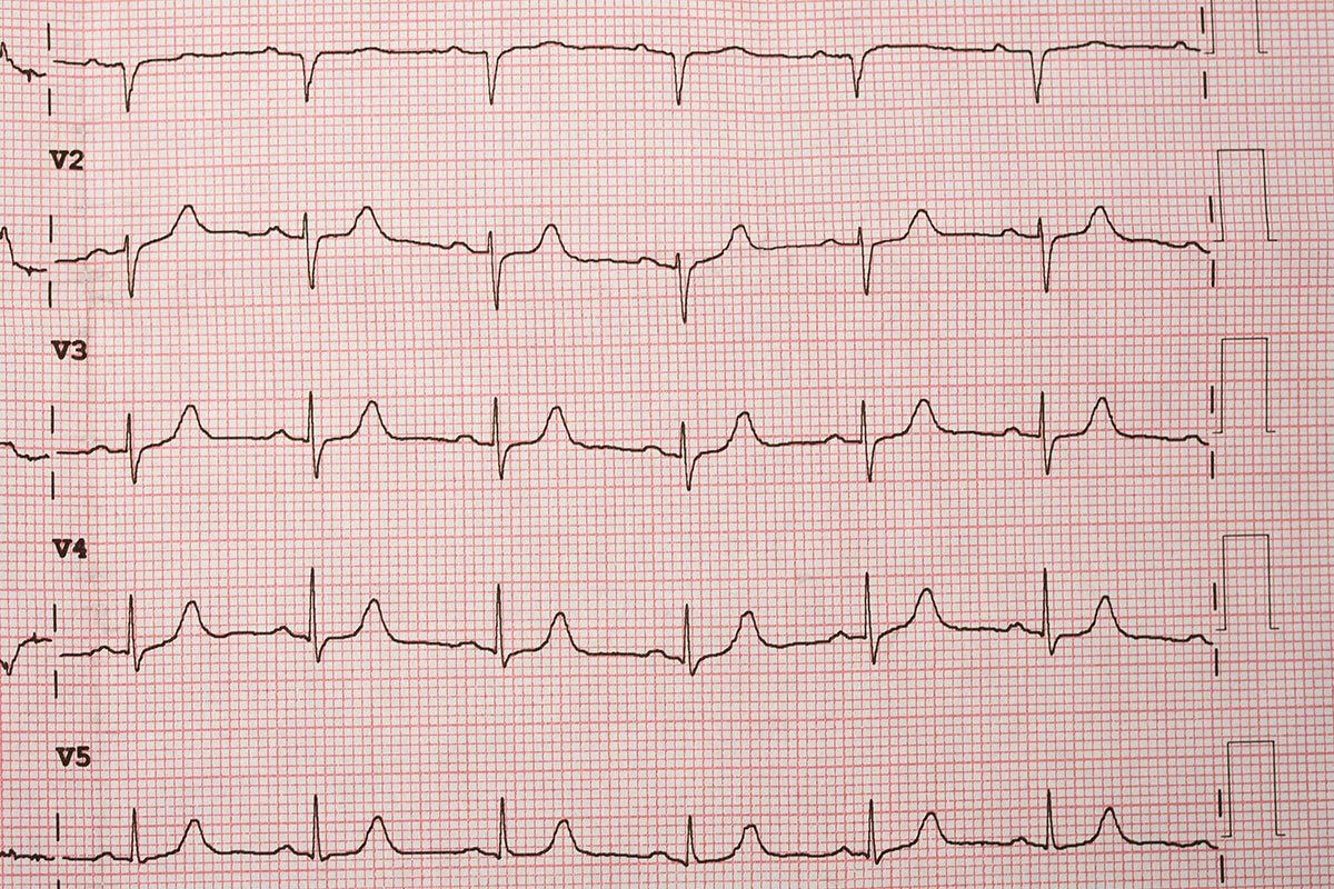 AVC : les maladies du coeur sont un facteur de risque.