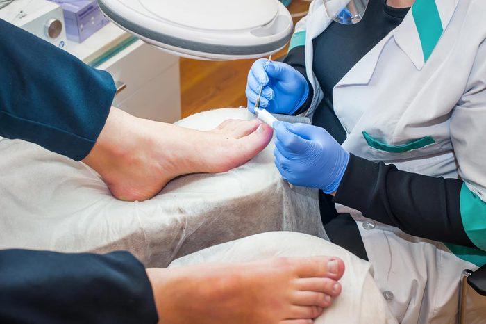 Symptôme de cancer chez la femme : changement des ongles.