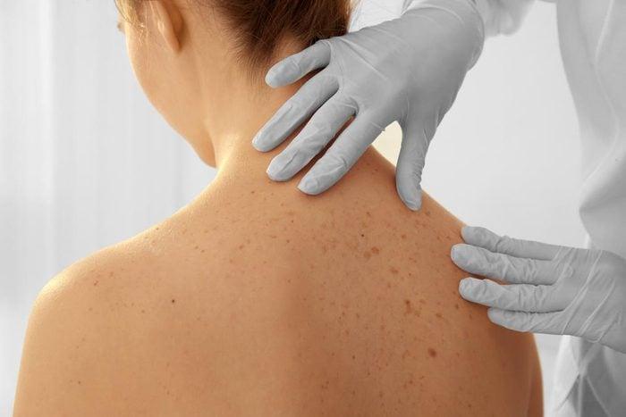 Symptôme de cancer chez la femme : plaie ou bosse cutanée.