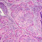 29 faits à connaître sur le cancer du col de l'utérus