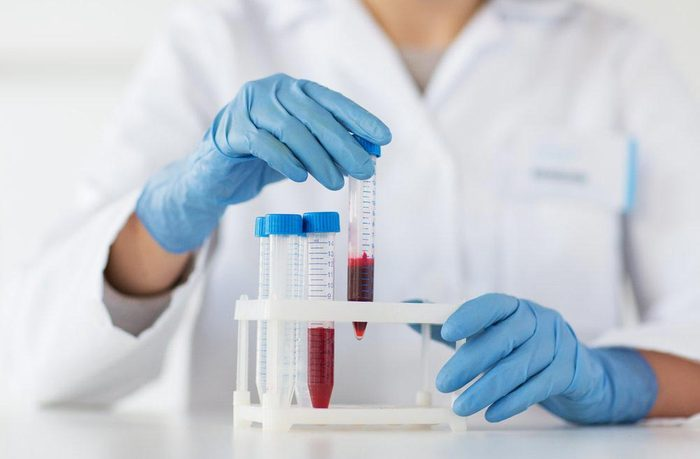 Don de sang : on peut donner des plaquettes toutes les deux semaines.