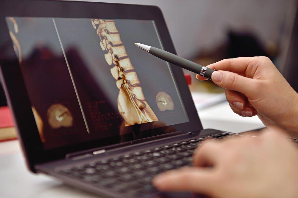 Une femme de 50 ans et plus peut avoir besoin d'une scintigraphie osseuse.