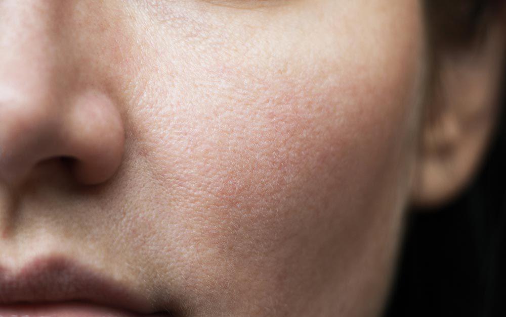 Pourquoi les maladies ont-elles une odeur?