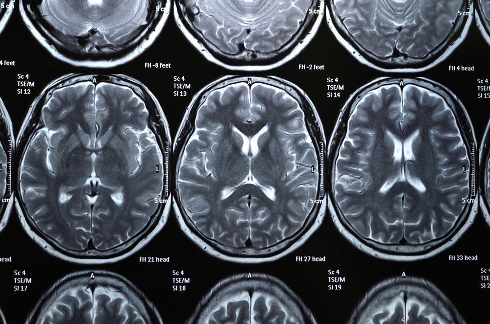 Le manque de sommeil augmente le risque de maladie de Parkinson.
