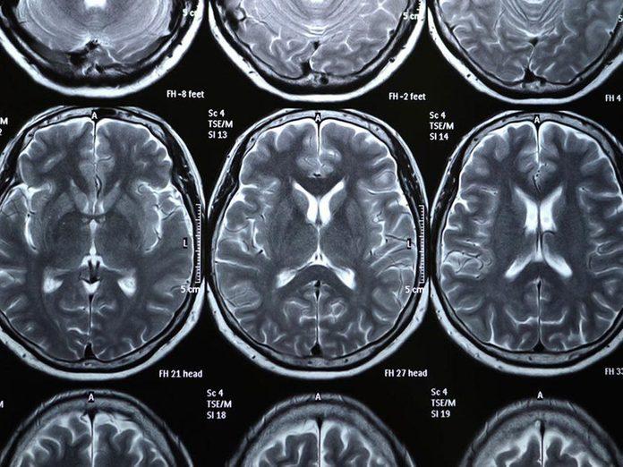 Le manque de sommeil peut augmenter le risque de maladie de Parkinson.