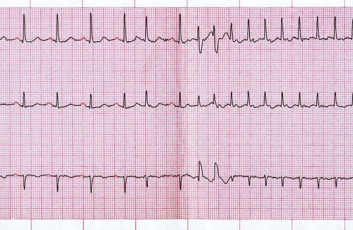 Les palpitations cardiaques peuvent signaler un problème grave.