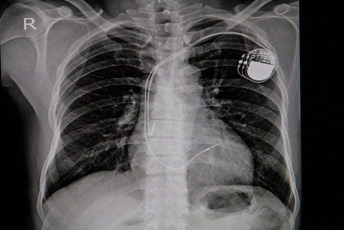 Les palpitations cardiaques peuvent signaler un problème si vous avez déjà eu des problème cardiaque.