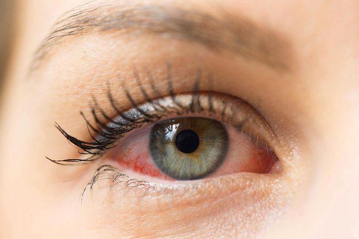 Protéger vos yeux en les protégeant des allergènes.