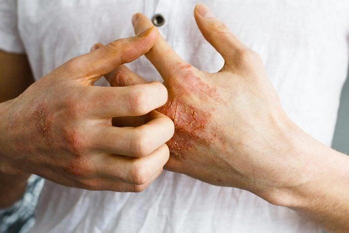 Symptômes de maladies : le psoriasis peut être un premier signe d'arthrite.