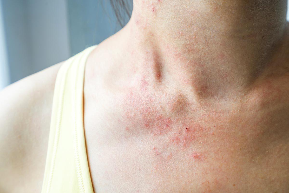 Symptômes de maladies : des rougeurs peuvent être le signe de la maladie coeliaque.