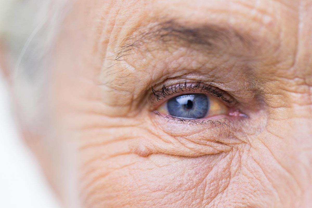 Symptômes de maladies : la jaunisse du blanc de l'oeil peut être un signe d'hépatite.