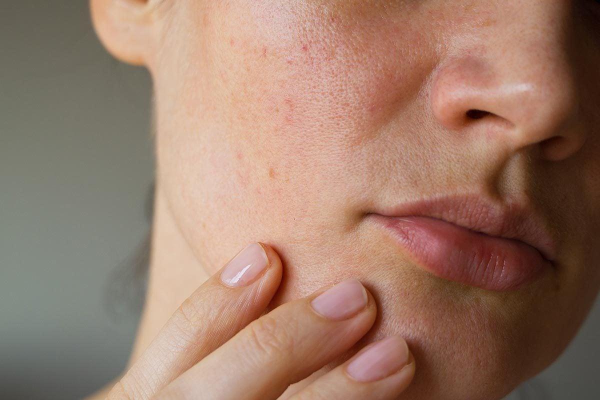Symptômes de maladies : une éruption peut être un signe de lupus.