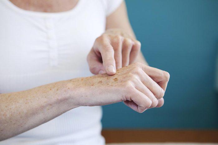 Symptômes de maladies : les tâches de vieillesse doivent être examinées.