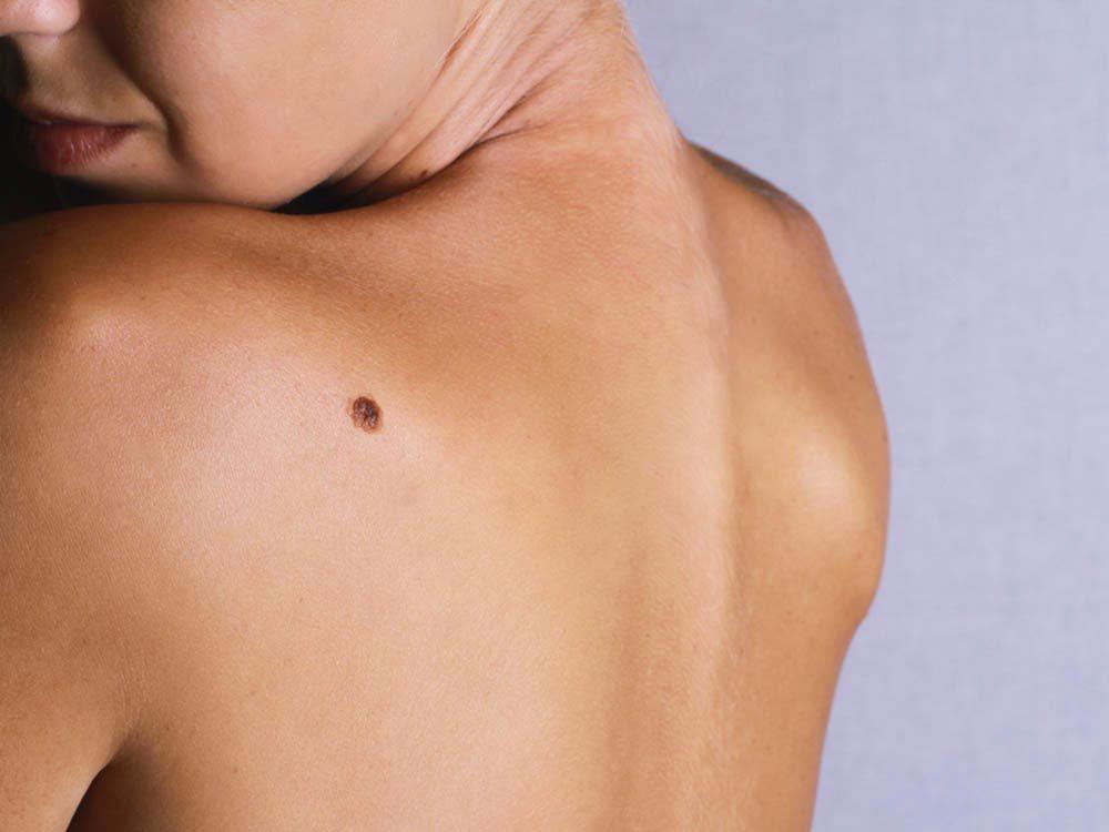 Symptômes de maladies : surveillez vos grains de beauté.