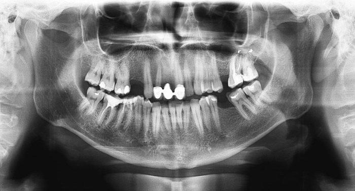 Les affaires criminelles ne peuvent plus être classées avec des marques de dentition pour seules preuves.