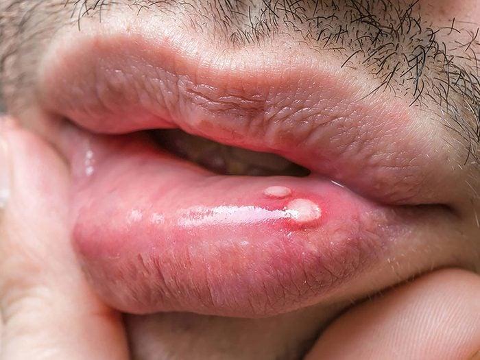 Une douleur dans la bouche peut être un sogne de cancer chez l'homme.