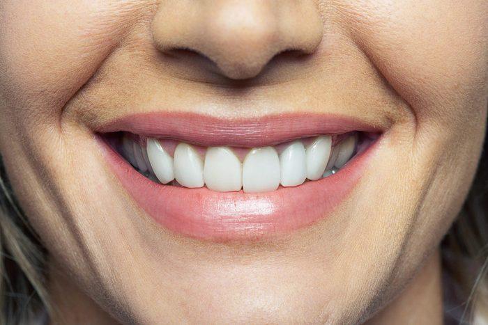 Problème de dents : un saignement des gencives peut signaler le diabète de type 2.
