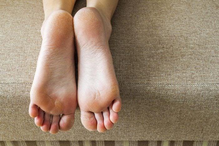 Symptôme d'anémie : vos mains et vos pieds sont froids