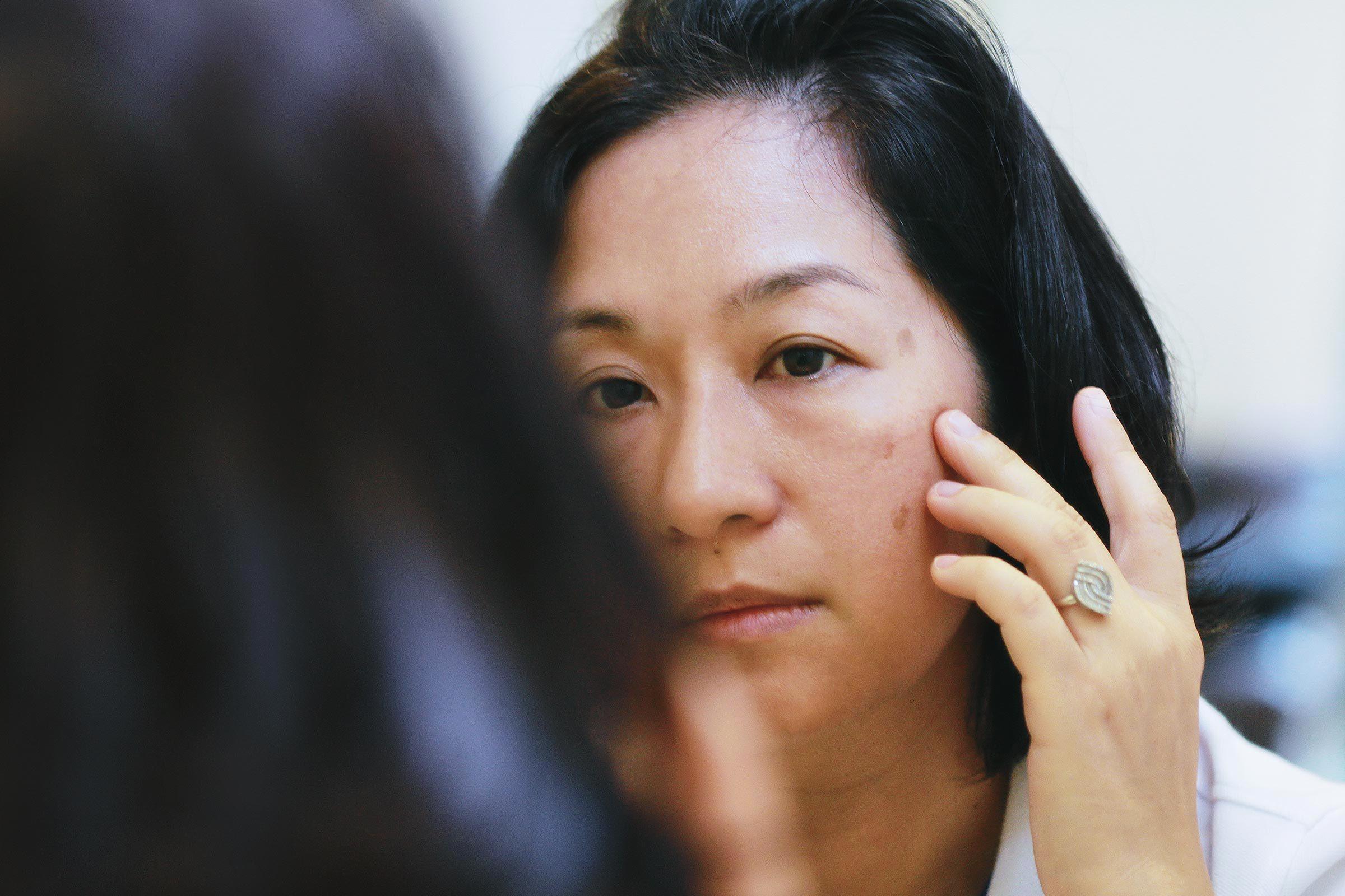 Symptôme d'anémie : vous avez le teint plus pâle.