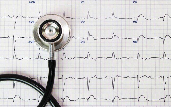 L'arthrite augmente vos risques de maladie cardiaque.