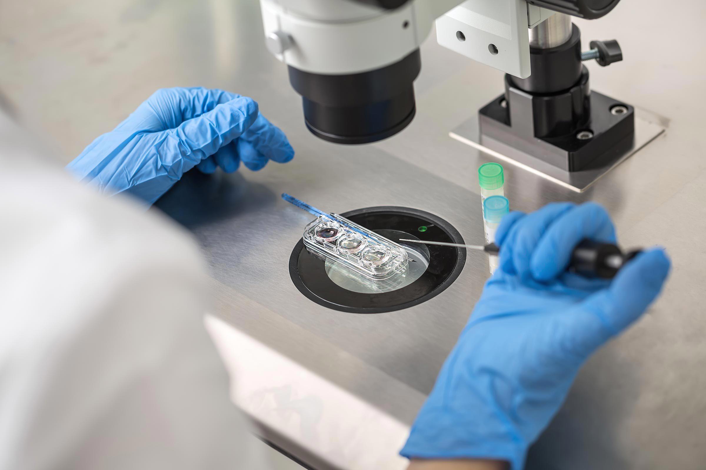 Arthrite : l'établissement d'un profil génétique pourrait améliorer le traitement.