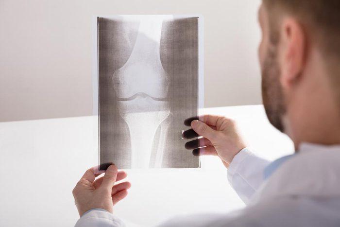 Arthrite : les rayons X restent le meilleur outil de diagnostic.