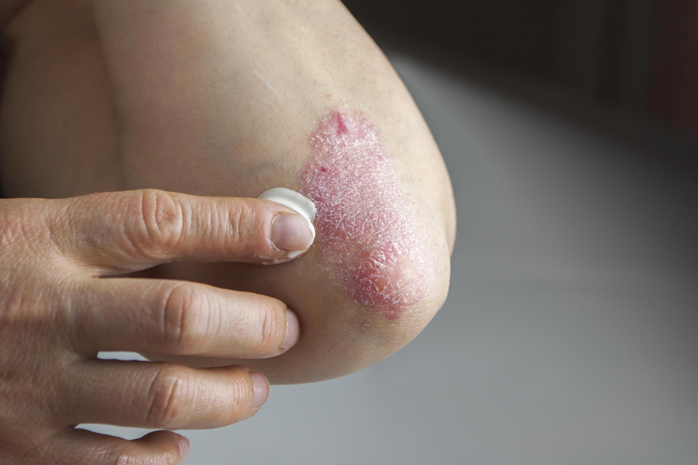 L'arthrite psoriasique est différente de l'arthrite rhumatoïde.