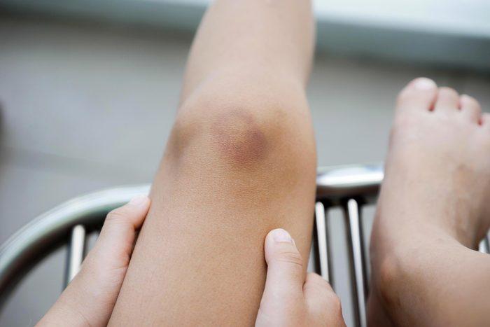 Signe inquiétant du corps : l'apparition excessive de bleus.