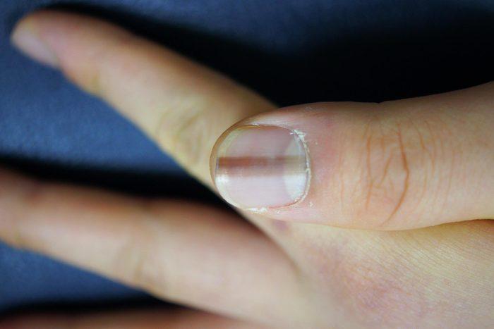 Signe inquiétant du corps : une ligne sombre sur les ongles.