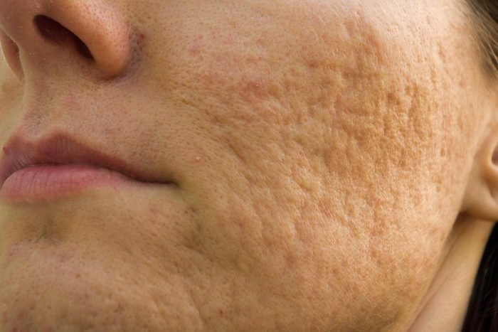Signe inquiétant du corps : une peau ressemblant à une peau d'orange.