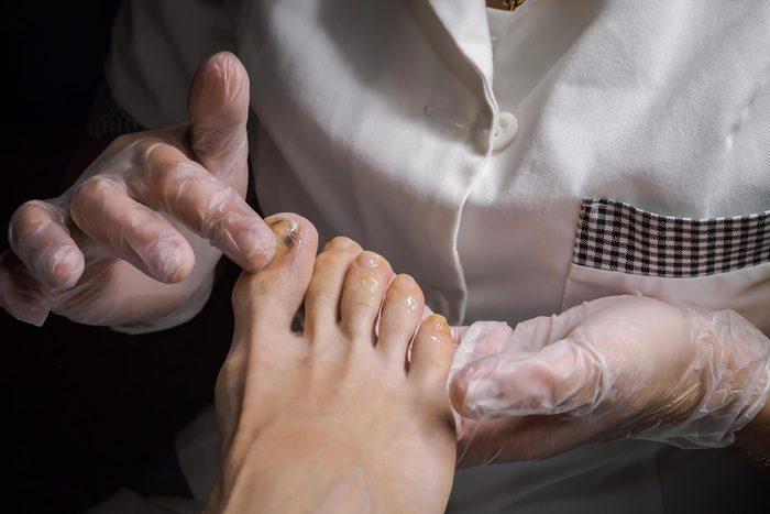 Signe inquiétant du corps : des taches blanches sur les ongles.