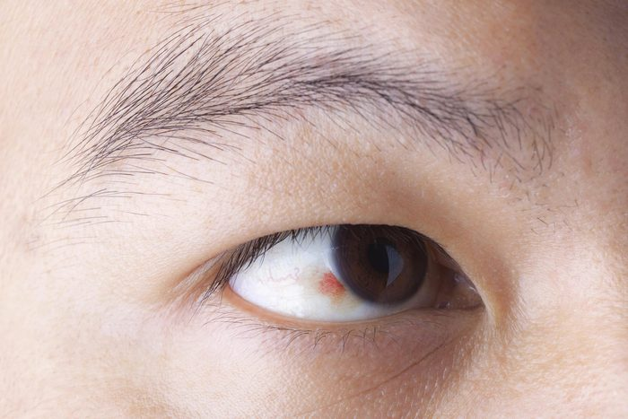 Signe inquiétant du corps : des taches récurrentes de sang dans l'œil.