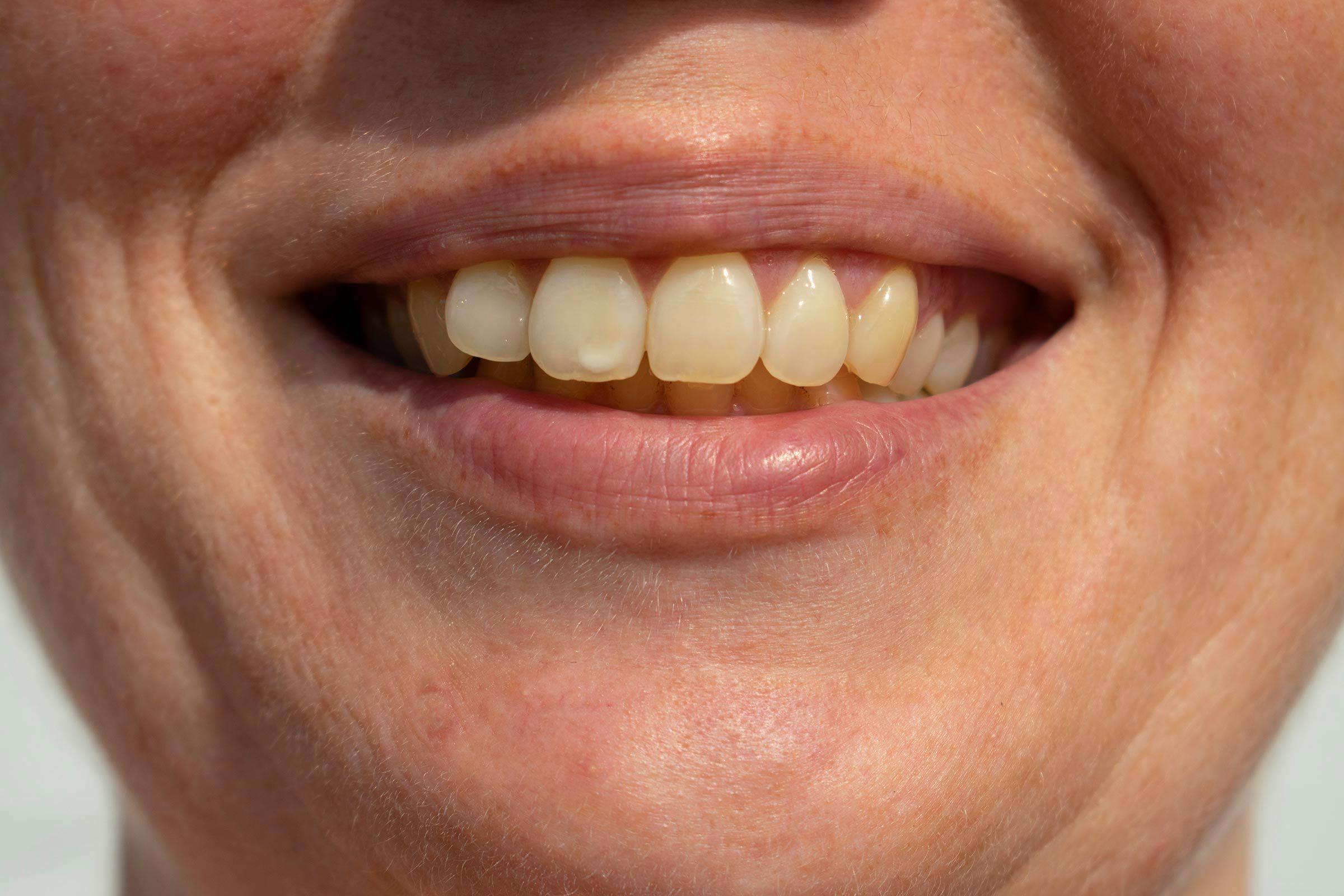 Signe inquiétant du corps : des taches sur les dents.