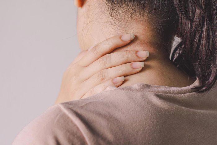 Signe inquiétant du corps : des taches sur le cou.