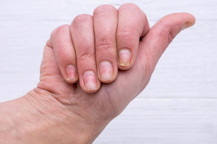 Signe inquiétant du corps : des trous dans les ongles.